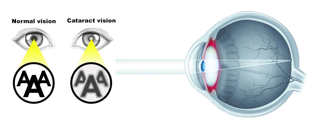 Cataract and Phaco Surgery