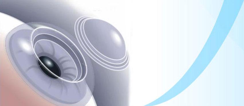 Cornea & External Disease