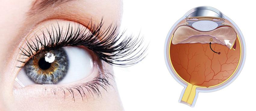Vitreo-Retina